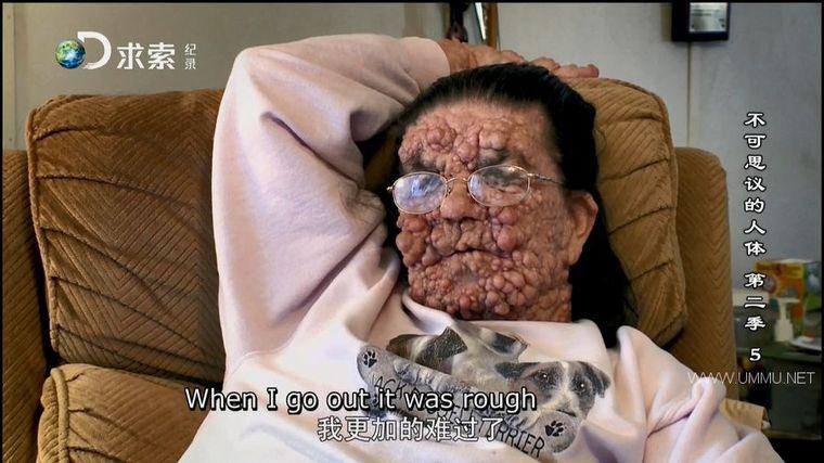 探索频道《不可思议的人体 Body Bizarre》第二季全8集 国语中英双字 求索引进版 1080P/MP4/24.4G 全球罕见病例</BR><span>年费会员专享</span>插图(2)