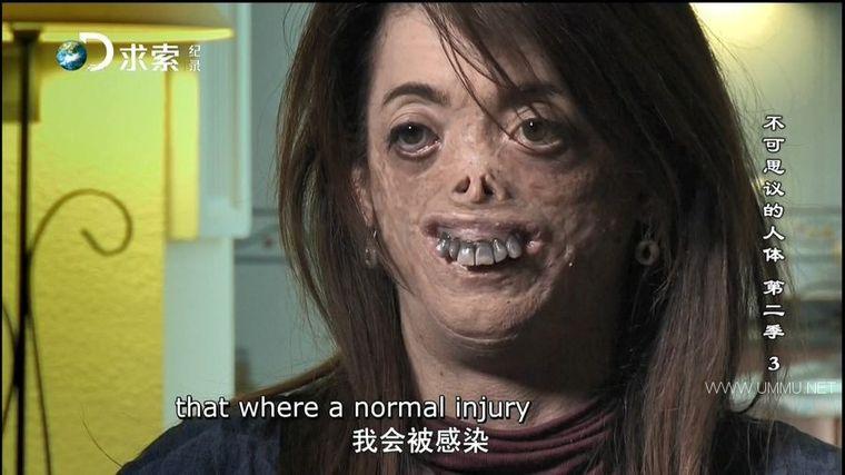 探索频道《不可思议的人体 Body Bizarre》第二季全8集 国语中英双字 求索引进版 1080P/MP4/24.4G 全球罕见病例</BR><span>年费会员专享</span>插图(1)