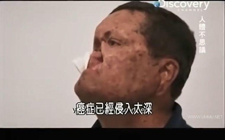 探索频道《不可思议的人体 Body Bizarre》第三季全10集 英语中字 480P/MP4/1.32G 全球罕见病例插图(5)