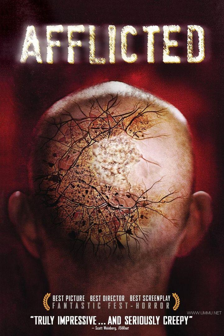 Netflix纪录片《怪病纪实 Afflicted 2018》全7集 英语中字 1080P/MP4/6.93G 怪病纪实插图